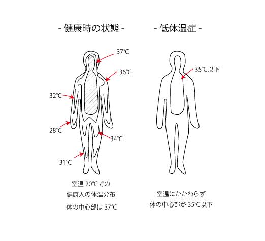 低体温症の人体図